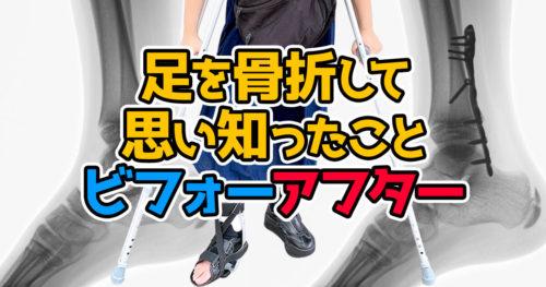 足を骨折して思い知ったことビフォーアフター 【社会 不便すぎ】